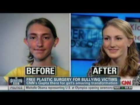 Free Plastic Surgery For Bullying Victim NADIA ILSE