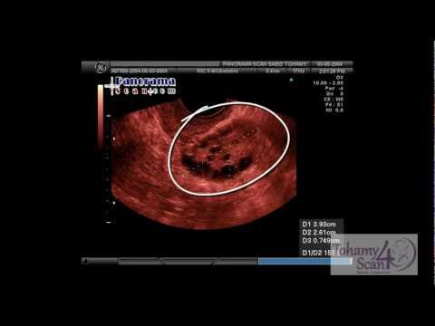 Gynecology Ultrasound Course - Polycystic Ovarian Disease in Ultrasound