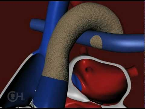 Stage 1 of Reconstruction of a Heart with Hypoplastic Left Heart Syndrome (HLHS) - CHOP