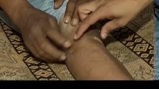 Deshhit: Delhi Doctor performs leg surgery on patient with head injury - ZEENEWS