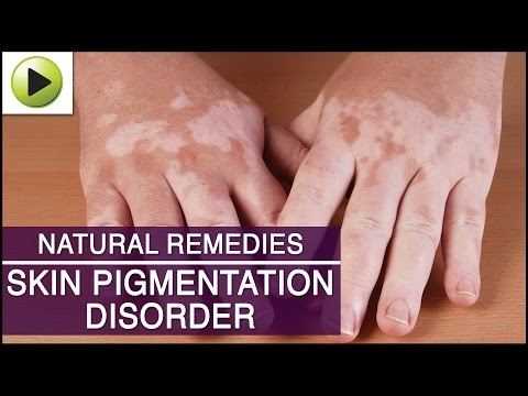 Skin Pigmentation - Natural Ayurvedic Home Remedies