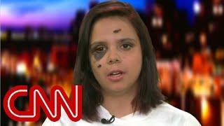 Survivor: Trump didn't express empathy in call - CNN