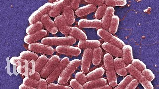 E. coli infections are gross. Here are 5 facts you can't unlearn about them. - WASHINGTONPOST