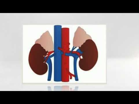 Dolor Rinones Sintomas -El cuidado de su riñón