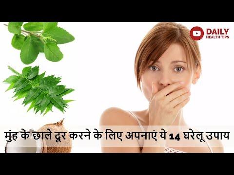 मुह के छालों से बचने के 14 घरेलु उपाय   14 Natural Home Remedies for Mouth Ulcers