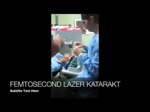 KATARAKT 3 Bıçaksız Katarakt Ameliyatı Femtosaniye Lazer Efekan Coskunseven