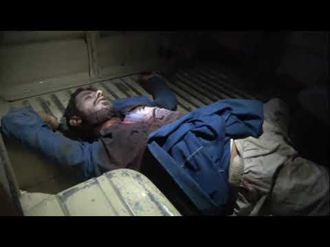 شاهد.. جثة قيادي حوثي لقي مصرعة أثناء تصدي القوات المشتركة لهجوم المليشيات في التحيتا