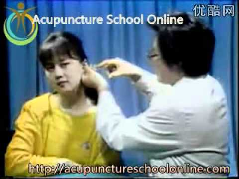 Acupuncture Video Course Lesson 22 - Auricular Diagnosis And Treatment