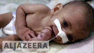Syrian children's deadly hunger crisis worsens as aid groups blocked - ALJAZEERAENGLISH