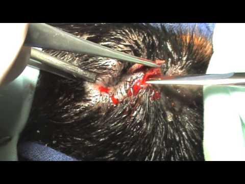 Entropion congenito. Blefaroplastia Hotz-Celsus modificada