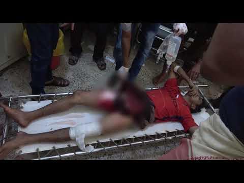 إصابة مواطن بقصق لمليشيات الحوثي على مدينة حيس جنوب الحديدة