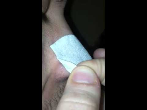 Pore strip for my husband! Lmao!!!