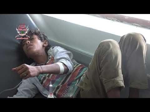 الحديدة .. إصابة طفل بإنفجار لغم زرعته مليشيات الحوثي في مديرية حيس