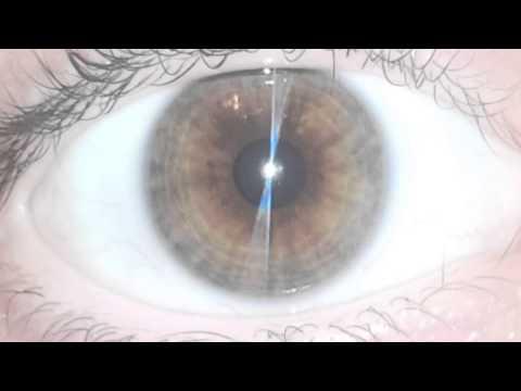 ✿ Iridology ✿ - Eye Review 19 ★★★★★