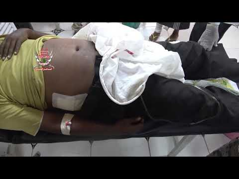 الحديدة .. مليشيات الحوثي تقصف مجمع أخوان ثابت وإستشهاد موظف وإصابة إثنين آخرين بجروح