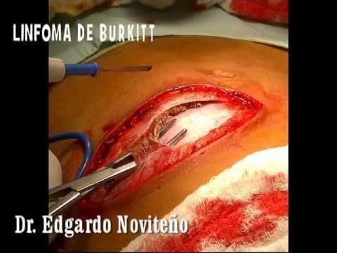TUMOR ABDOMINAL   Dr  Noviteño
