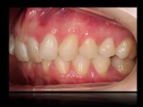 Caso 14. Invisalign. Tratamiento de una maloclusión dental Clase II div 2º.