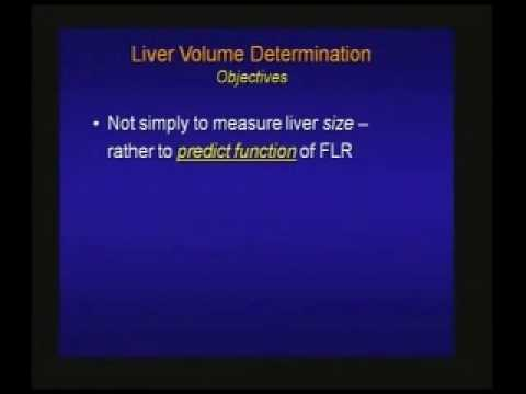 Preoperative Assessment of Liver Function .Volumetric Assess