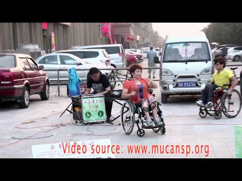 Amputee, wheelchair, Polio
