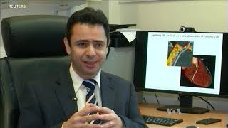 Using CT Scans to Predict Heart Attacks - VOAVIDEO