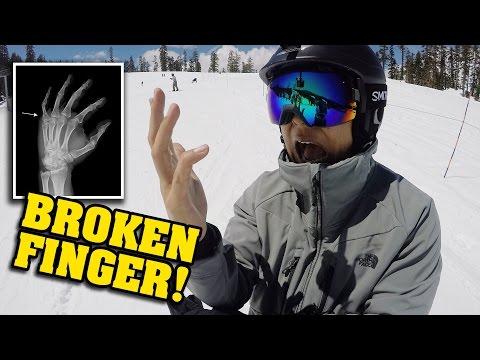 BROKEN FINGER!!! Snowboarding Gone Wrong!