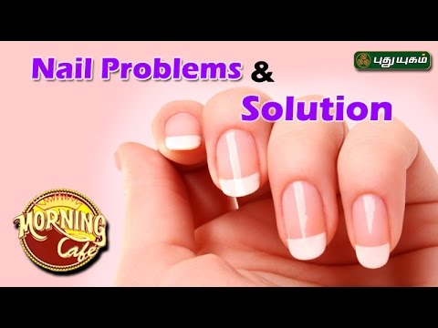 Tips to prevent Common Nail Problems | அழகு கலை For Beauty | Morning Cafe | 25/04/2017