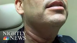 Study Shows 11 Million Men Are Infected With Cancer-Linked HPV And Don't Know It   NBC Nightly News - NBCNEWS