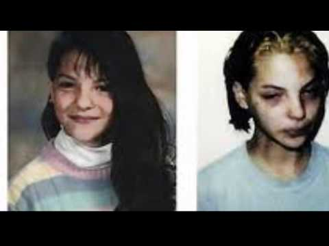 Crystal Meth Before & After and its Devastating Effects