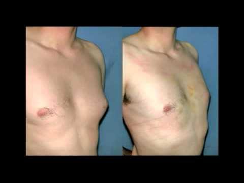 Cirugías - Mamoplastía - Doctor Rodrigo Cabello Perez de Arce