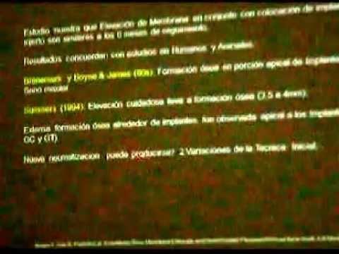 REVISTA DE REVISTAS: TÉCNICAS PARA EL MANEJO DEL SENO MAXILAR. PARTE 2