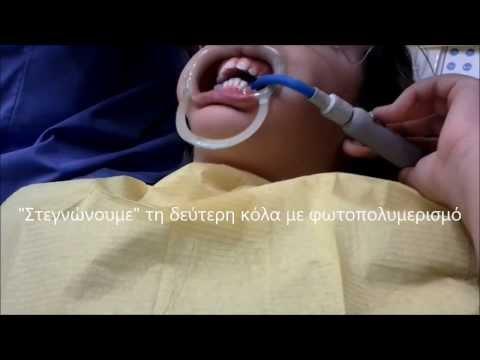 πώς κολάμε τα σιδεράκια στα δόντια; Ορθοδοντικός Μούλλας