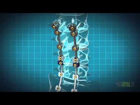Royal 3D Studio |  Animação 3D. Implantes coluna, crânio-maxilo-facial e prótese de joelho.