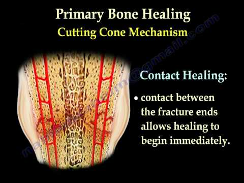 Fracture Healing Part 2  - Everything You Need to Know - Dr. Nabil Ebraheim