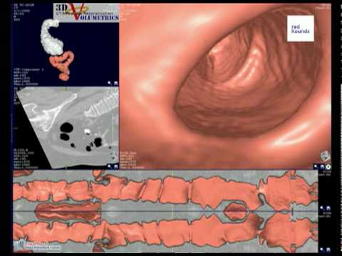 Virtual Colonoscopy Fly Through (Courtesy 3D Volumetrics)