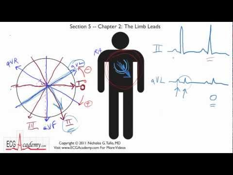 Frontal or Limb Leads 5-2 - ECG / EKG Interpretation -- BASIC