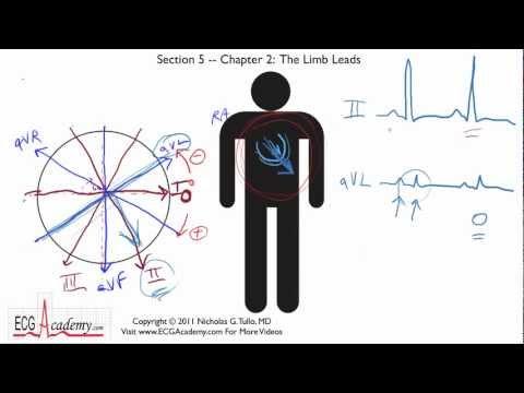 Frontal or Limb Leads 5-2 - ECG / EKG Interpretation -- BASIC