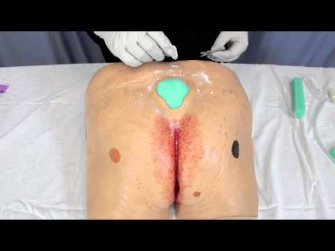 Basic Crusting Technique for Negative Pressure Wound Therapy