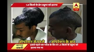Mumbai: MEDICAL MIRACLE: 7 hours of operation helps man get rid of his 'Second Head' - ABPNEWSTV