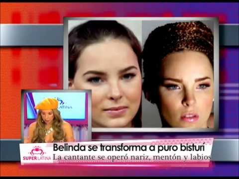 Famosas antes y después de una cirugía de nariz / Celebrities before and after a nose job