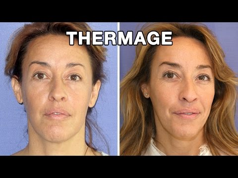 Thermage antes y después | Testimonio Irene