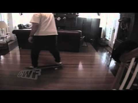 Accidente de skateboard en casa