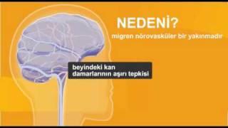 Migren nedir nasıl bu hastalıktan kurtulunur