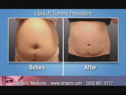 Dr. Darm LipoLift III (Laser Lipolysis) - Patients' Testimonials / Success Stories