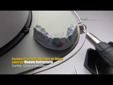 Cerámica Estratificada Libre de Metal sobre un Modelo Refractario (Carillas, Chips e incrustación)