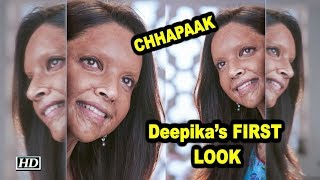 Deepika's FIRST LOOK as Acid Attack Survivor from 'CHHAPAAK' - IANSLIVE