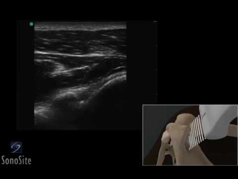 3D How To: Ultrasound Guided Shoulder Injection Medial Approach - SonoSite Ultrasound