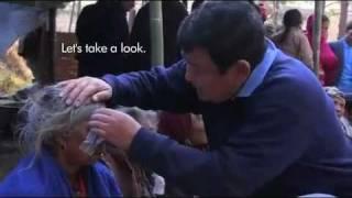 فيديو وصور لطبيب نيبالي يعالج 100 ألف كفيف بتقنية تستغرق 5 دقائق فقط