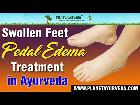 Swollen Feet - Pedal Edema Treatment in Ayurveda