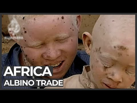African albinos killed for body organs - 23 Jul 09