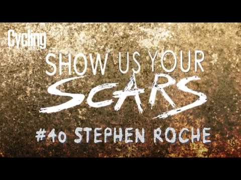 Show us your scars: Stephen Roche #40